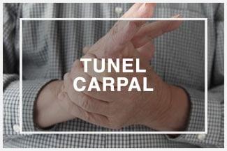 Tunel Carpal en Baltimore MD